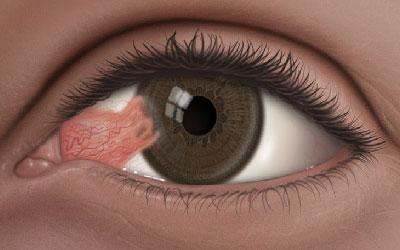 بیماری ناخنک چشم